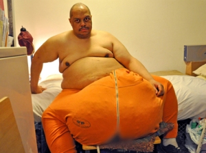 "TLC to air 'The Man with the 132-Pound Scrotum"" Monday, August 19 at 9 p.m."
